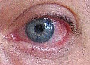 lenti a contatto con acido ialuronico per occhi secchi